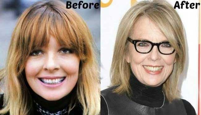 Diane Keaton Plastic Surgery – Solution for Every Flaw