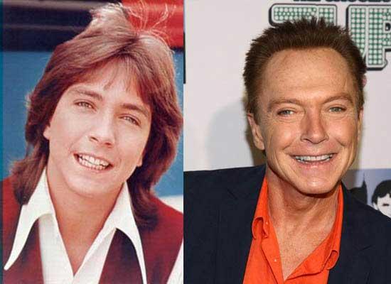 David Cassidy Battle against Wrinkles