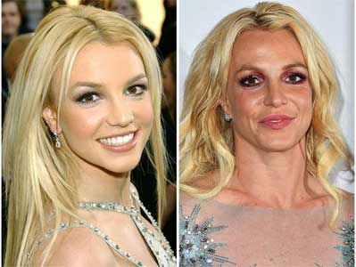 Britney Spears Plastic Surgery – Lasted Fame and Beauty