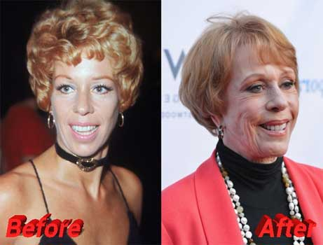Carol Burnett Beauty Enhancement – The Secrets of Lasted Youthfulness